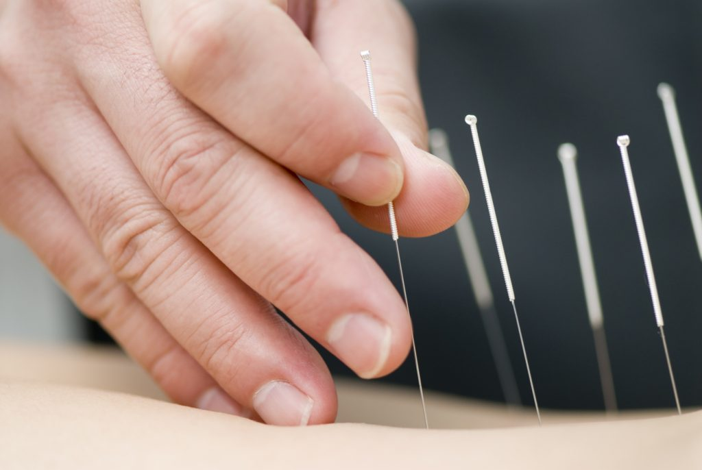 Doctor uses needles for treatment of the patient. acupuncture needles. alternative healthcare