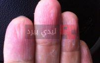 علاج تقشر جلد الاصابع طبيعيا 3