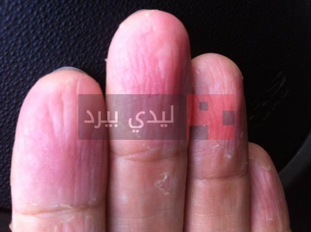 علاج تقشر جلد الاصابع طبيعيا 1