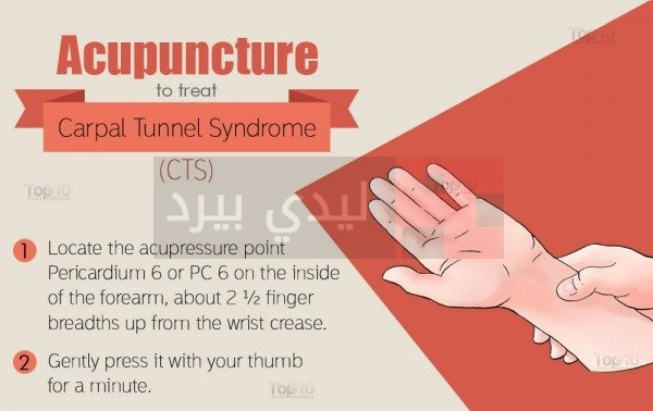 Acupuncture-carpal2-600x450