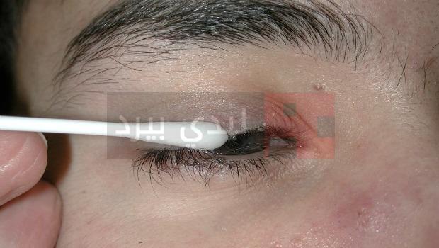 Eyelid-hygiene