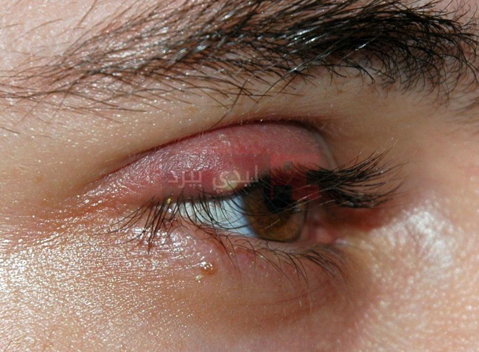 علاج التهاب جفن العين 1