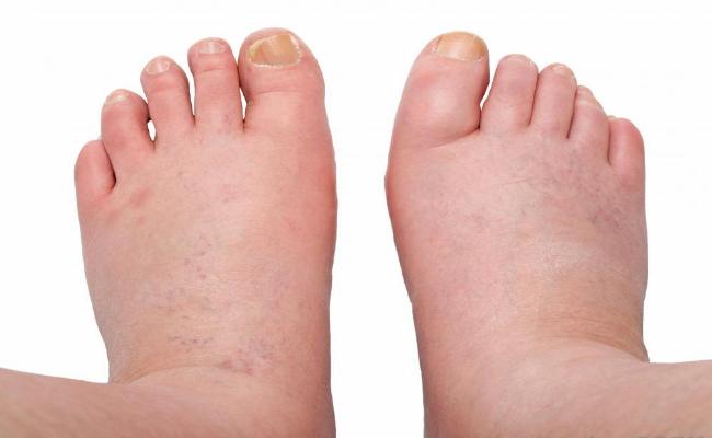 علاجات منزلية لتورم القدمين 1