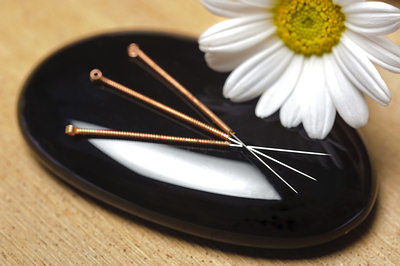 acupuncture-needles-natural-opt