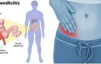 علاجات منزلية لالتهاب الزائدة الدودية 2