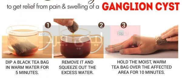 black-tea-ganglion-600x335