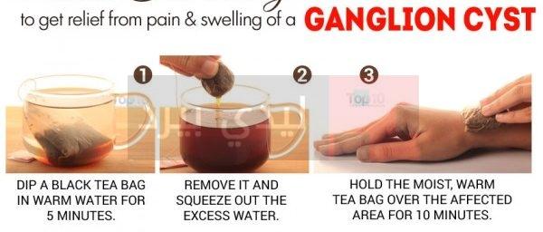 black-tea-ganglion-600x335