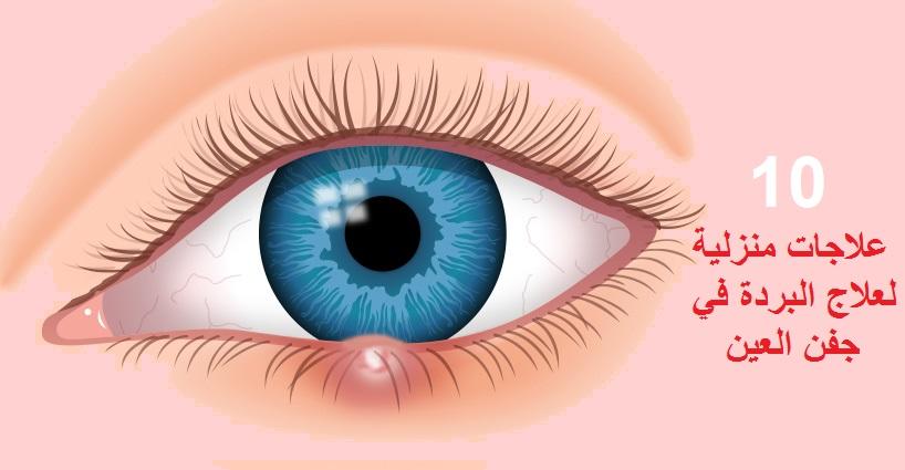 علاج البردة في العين ليدي بيرد