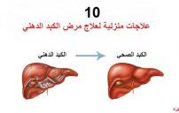 علاج مرض الكبد الدهني 3