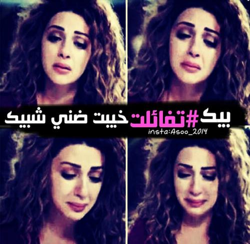 صور جروح عراقية