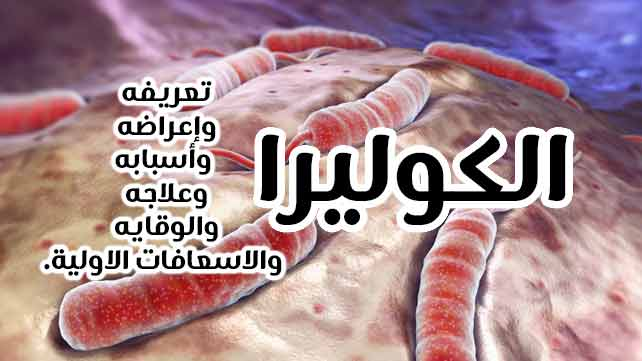 علاج وأعراض والوقاية من الكوليرا 1
